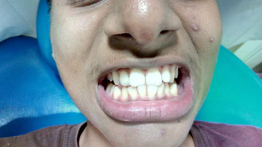 after bleaching teeth