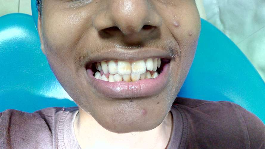 bleaching teeth sri lanka